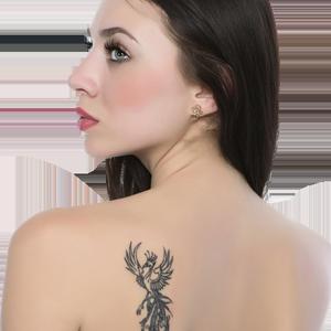 Inlaturarea tatuajelor - scoaterea tatuajelor