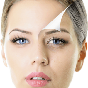 Liftingul facial si cervical
