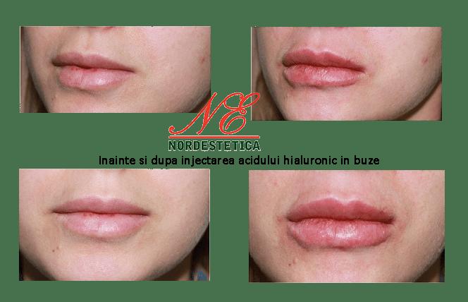 inainte si dupa injectarea acidului hialuronic in buze