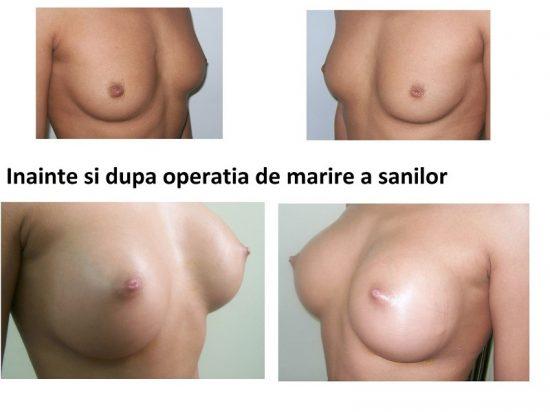 Poza marirea sanilor implante silicon inainte si dupa operatie