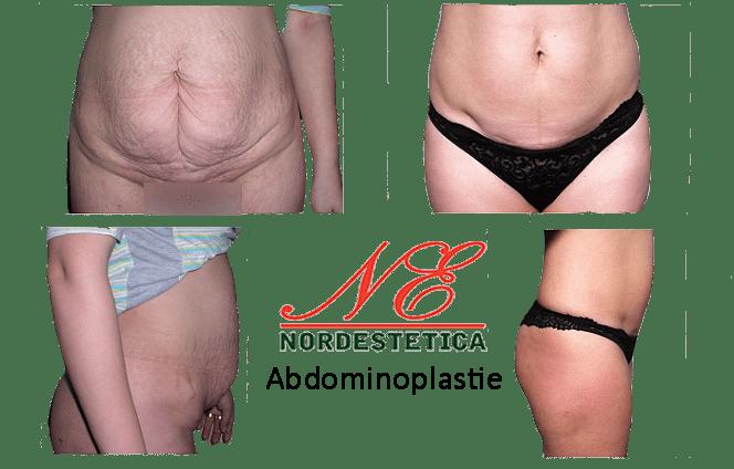 Operatie abdominoplastie Clinica Nordestetica