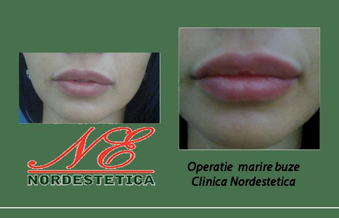 Operatie marire buze inainte si dupa injectare acid hialuronic